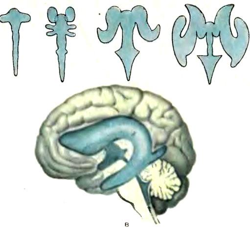 Субдуральное пространство головного мозга