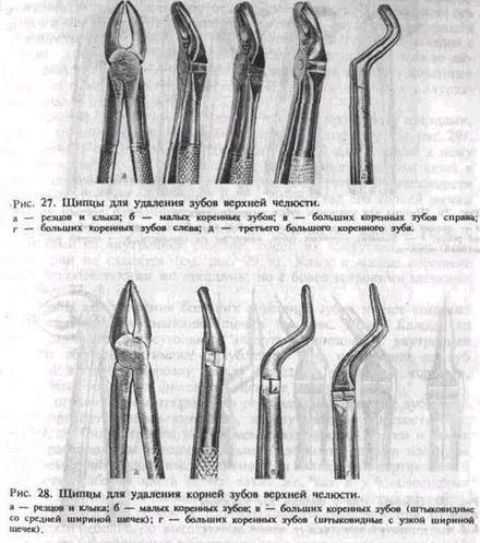 удаление корней зубов нижней челюсти угловым элеватором